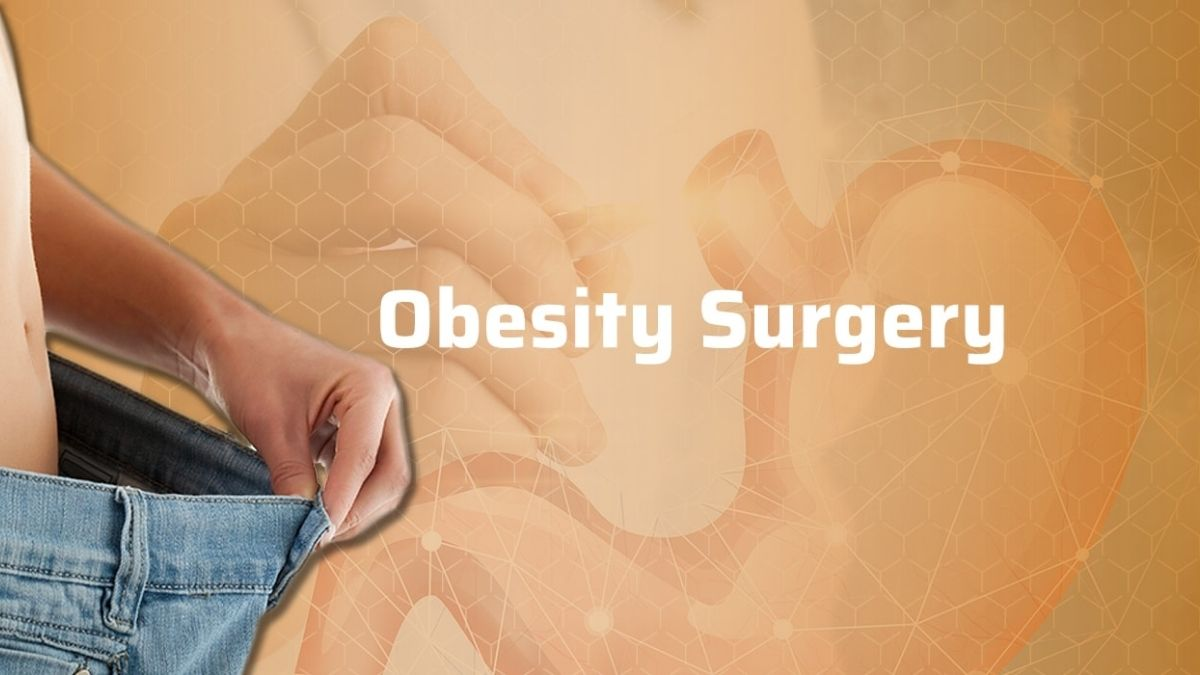 Study shows how life turned out for patients after 10 years of obesity surgery