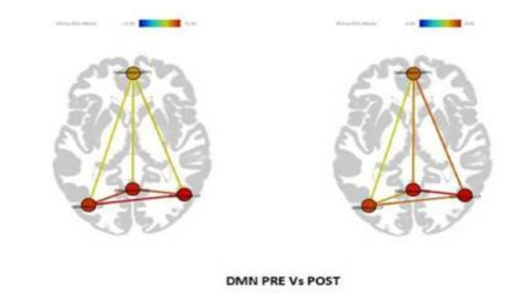 Supervised mindfulness meditation benefits patients with Mild Cognitive Impairment and early Alzheimer's disease