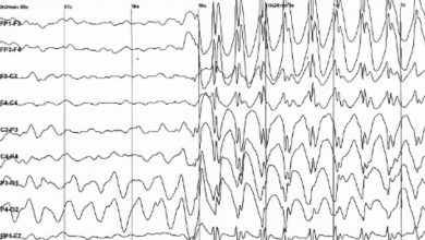 Studies find Genetic risk scores can aid in accurate diagnosis of epilepsy